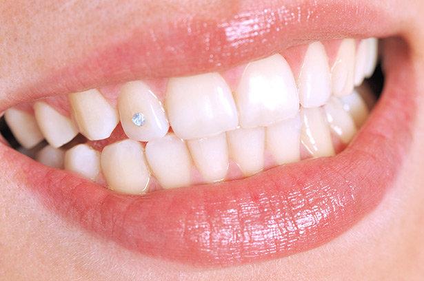 zubni nakit cirkon