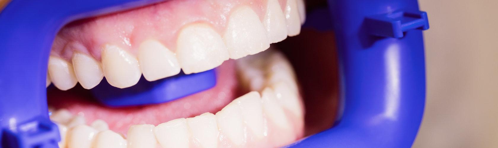 Zoom izbjeljivanje zubi.