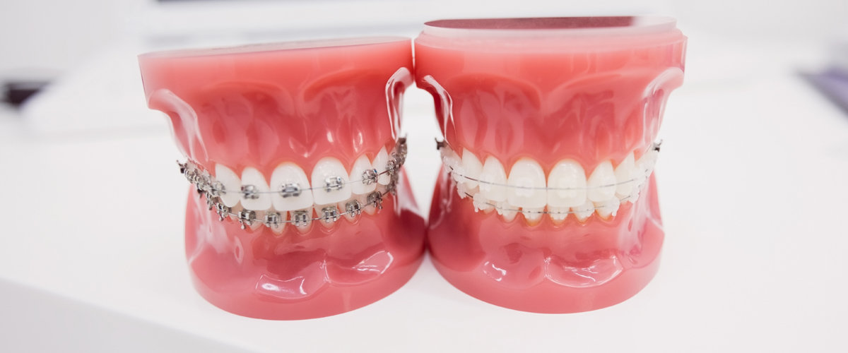 Zubi se mogu popravljati čak ako pacijent ima fiksni aparatić