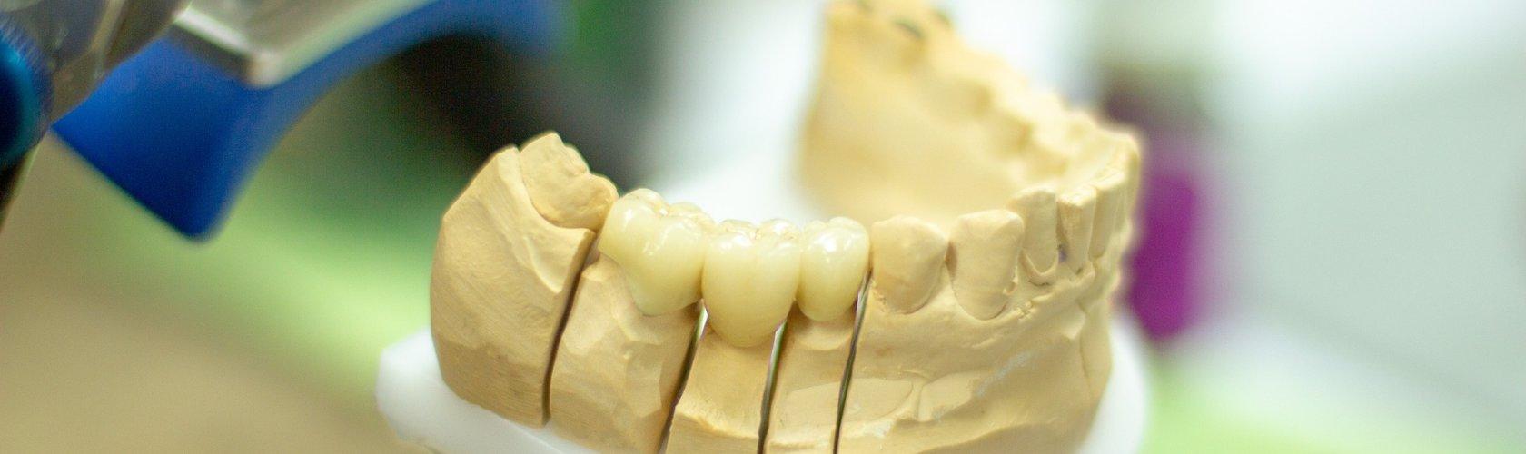 Izrada umjetnihi zuba